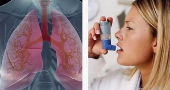 При каких болезнях используют ингаляторы и небулайзеры?