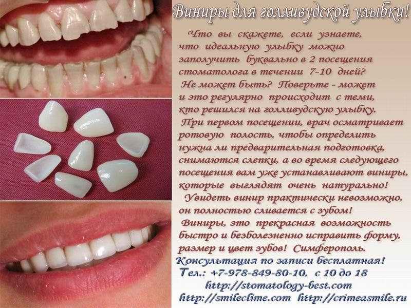 Имплантация зубов симферополь цены