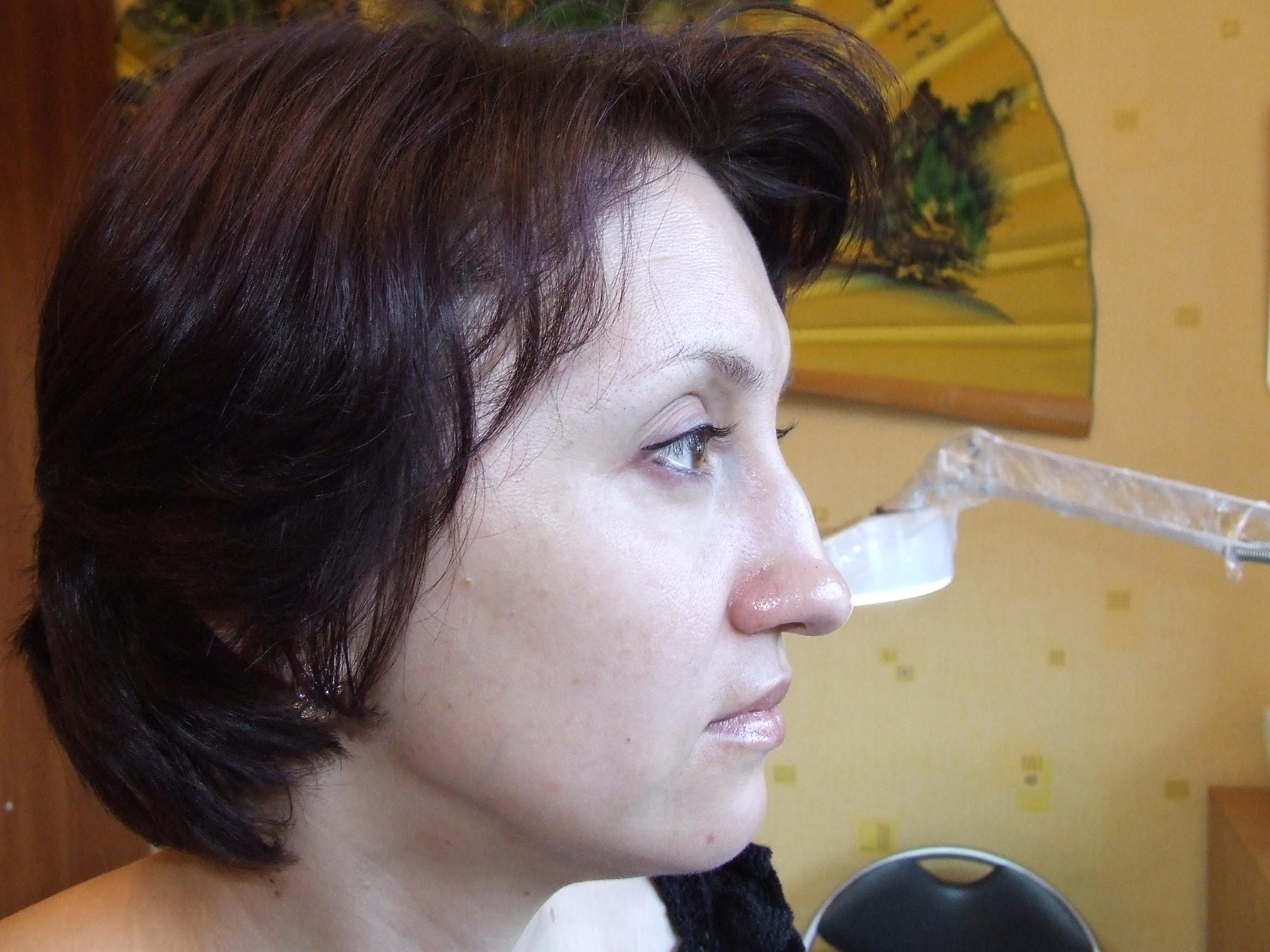Прыщик половые губы 12 фотография