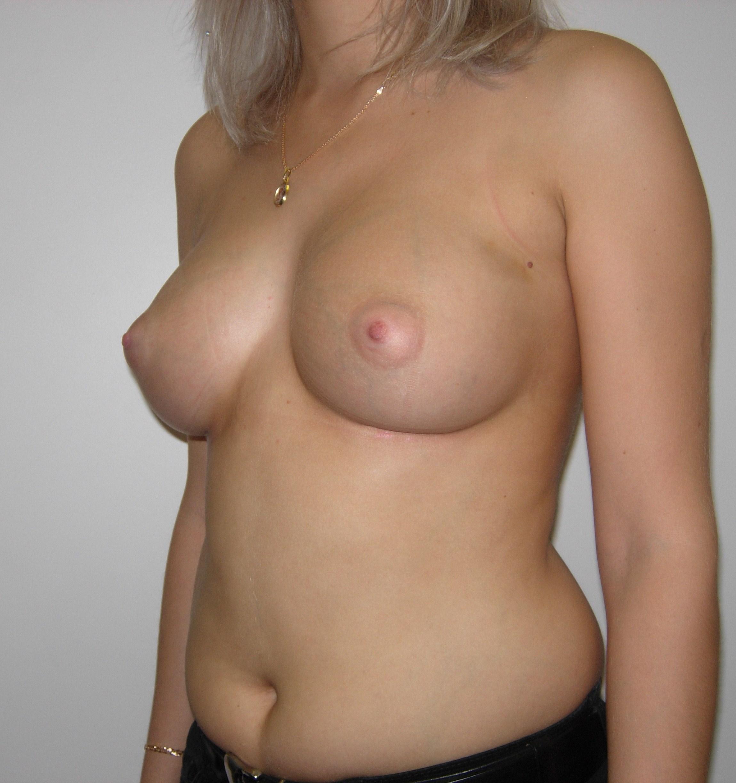 увеличенная грудь спустя 3 месяца твердая болит