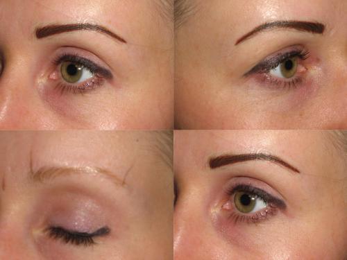 Изменение цвет глаз лазером до после